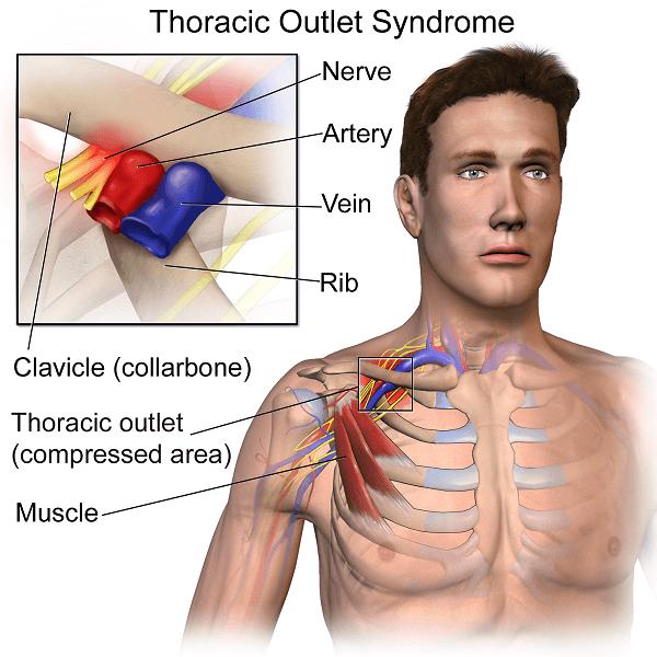 , Zespół górnego otworu klatki piersiowej – przyczyny, objawy, ćwiczenia