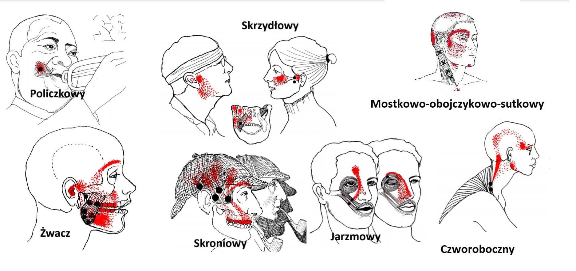 , Zaburzenie stawu skroniowo-żuchwowego (TMD)